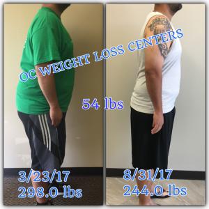 50 lb weight loss