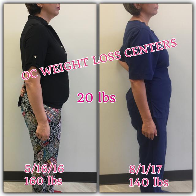 20 lb weight loss
