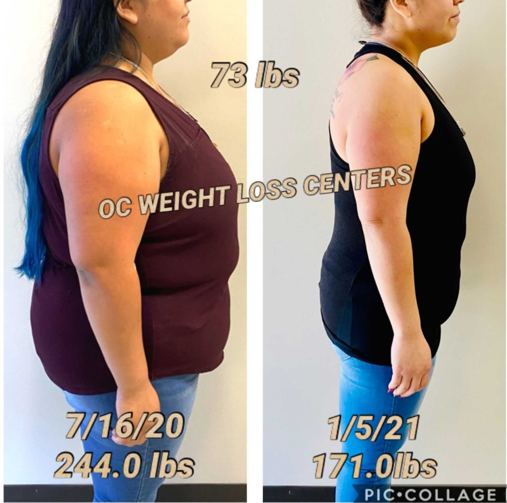 Before and After Weight Loss Results   OC Weight Loss